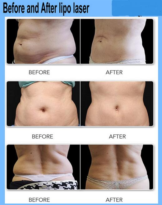 Before and After Lipo Laser
