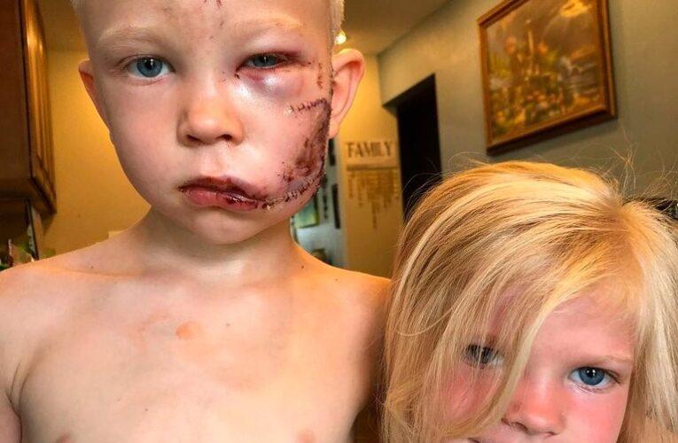 Niño héroe salvó a su hermana del ataque de un perro