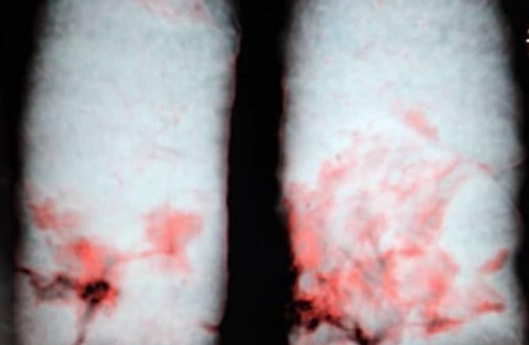Doctora venezolana contagiada por Covid publicó video sobre el deterioro de sus pulmones