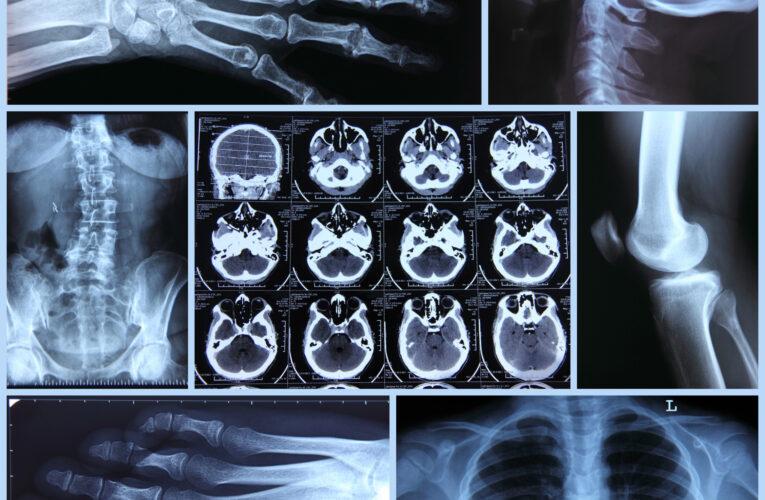 El estado se queda sin rayos X