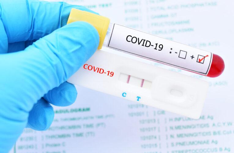 Pacientes con síntomas de Covid-19 no encuentran donde hacerse una prueba