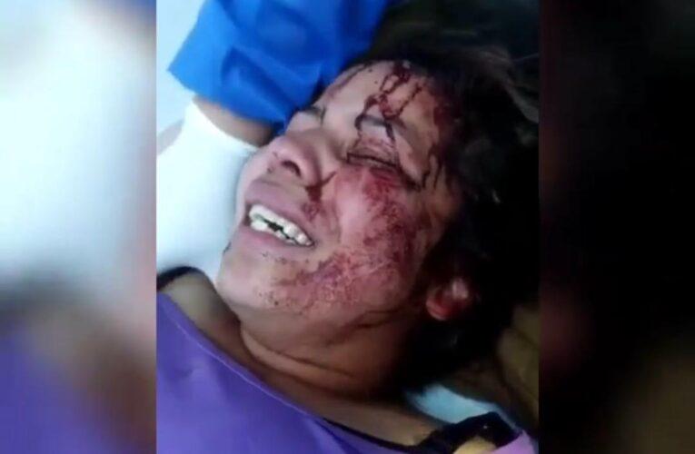 Agreden y desalojan a venezolana en Quito