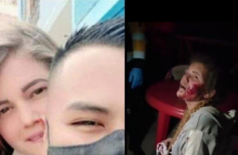 Policía peruano golpeó a su novia venezolana