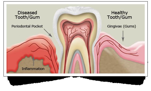 gum-periodontal-disease-w601-o