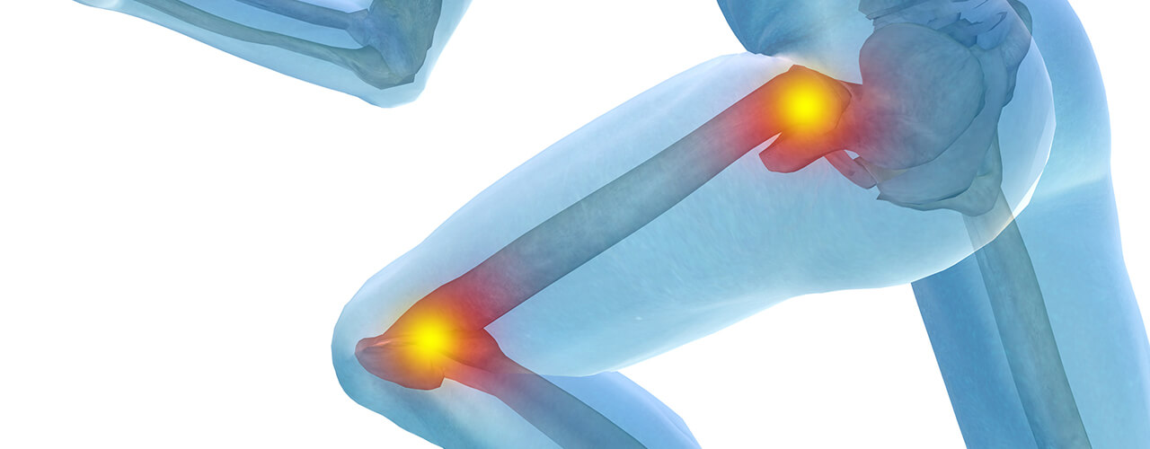 Hip Pain Relief and Knee Pain Relief Del Mar, CA
