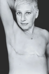 Images of Bilateral Mastectomy