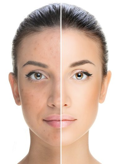 IPL Therapy Before and After Split Screen