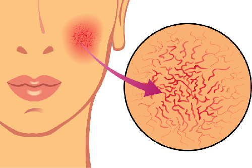 Red Spots and Facial Veins