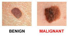 moles with different diameters with one being cnacerou and the other not.