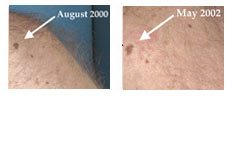 When moles start to evolve or change could mean danger.
