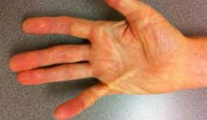 Hand image example of Dupuytren's Contracture requiring treatment.