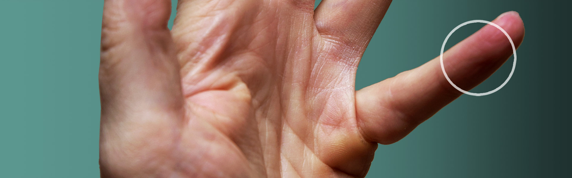 Photo of male hand requiring Xiaflex Protocol treatments for Dupuytren's contracture