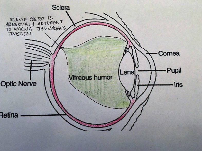 posterior vitreous detachment (PVD)