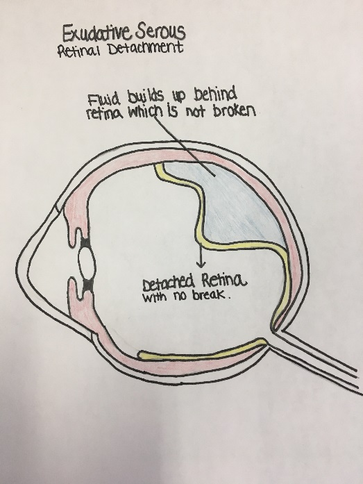 Retinal detachment 2
