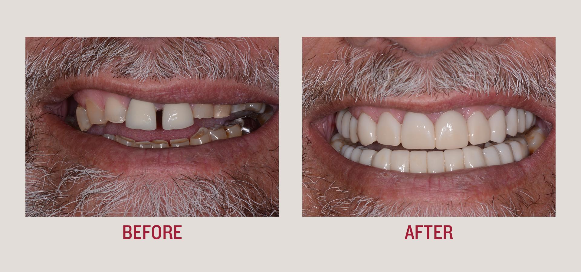 Dental Implants/Smile Makeover