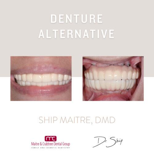 Dental ImplantsDenture 1
