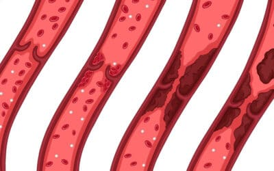 Can CBD Oil Help With Blood Clots?