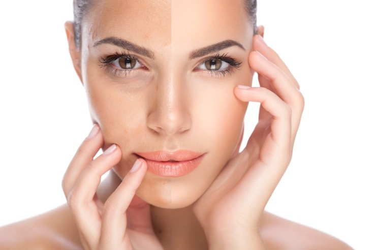 Sublative Skin Resurfacing | Enlighten Laser and Skin Care Clinic