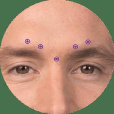 frownlines botox for men calgary