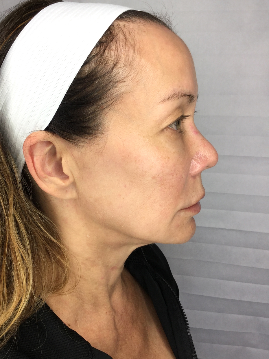 Mid-face Lift Right - After