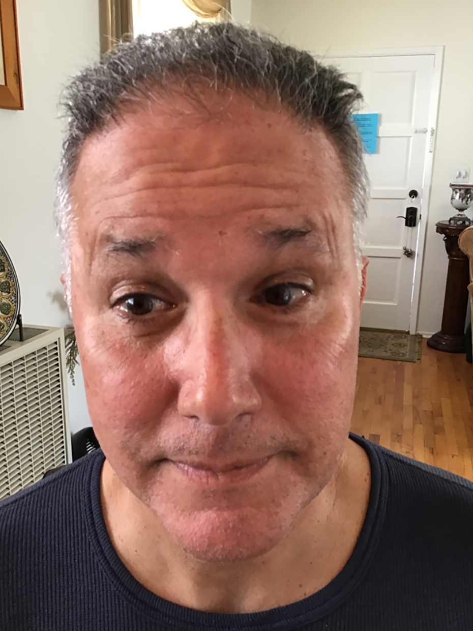 Forehead Lines - Before
