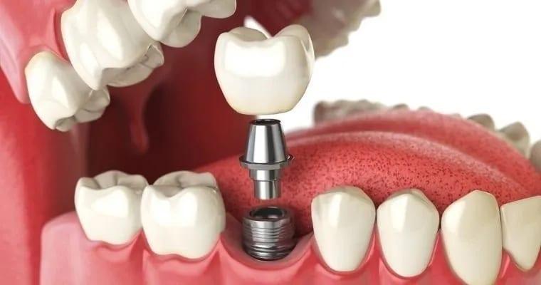 First Class Dental Todd L Johnson DDS, Inc.