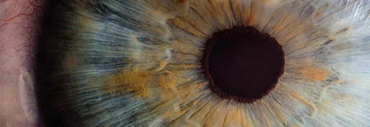 Edgewood Cataract Surgery