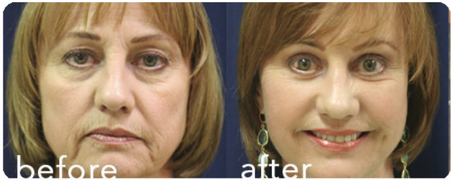 How I Developed the 3 Dimensional Facelift