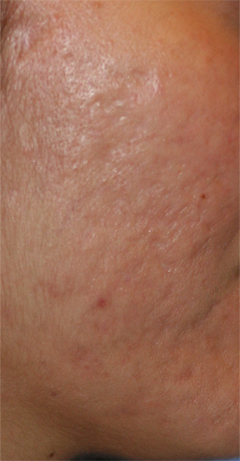Acne Scar Treatment Chicago