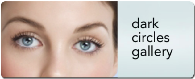 Surgical Correction of Dark Circles with Midface Muscle Lift for Young Patients