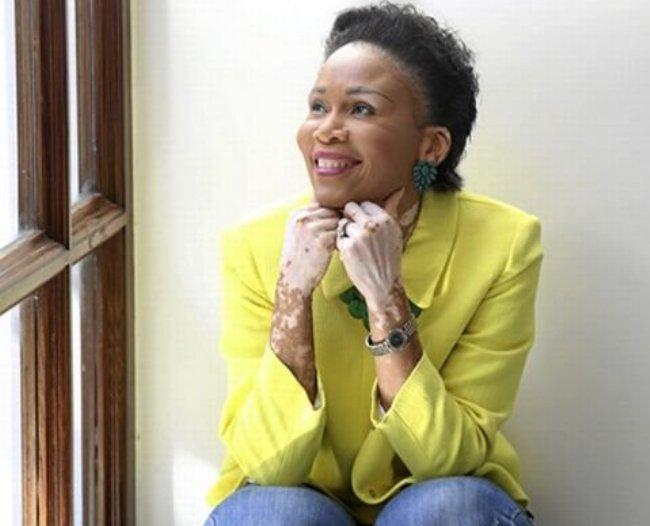 """Photo of """"Vitiligo Does Not Define Who I am,"""" Leleti Khumalo"""