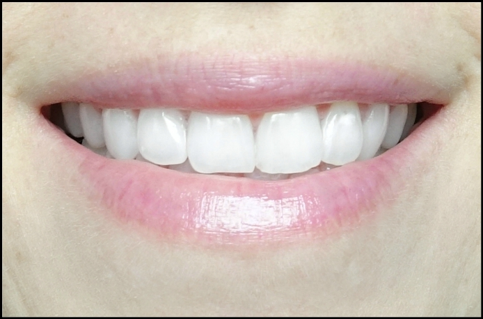 review of smile brilliant, smile brilliant teeth whitening kit, whitening teeth at home, dentist teeth whitening at home