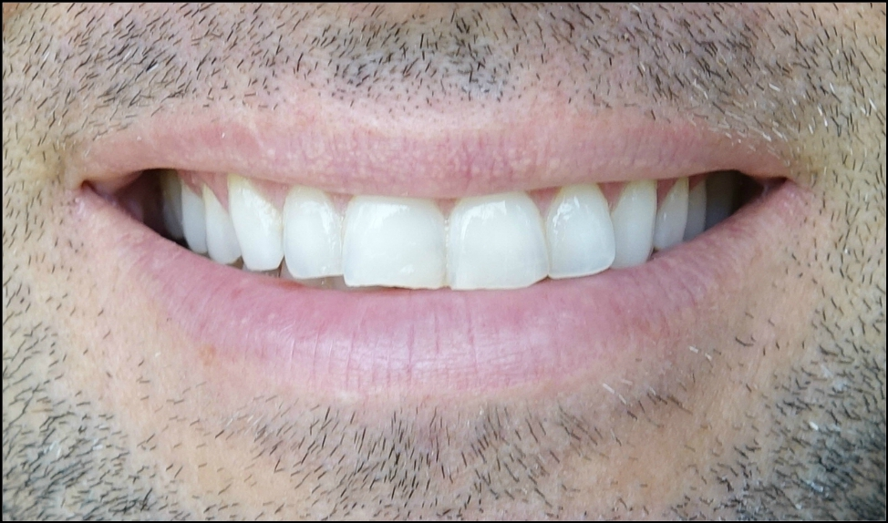 review smile brilliant, at home teeth whitening, custom teeth whitening reviews