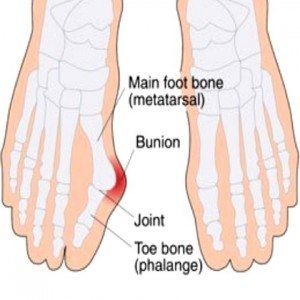 Bunions: More Information From A Chinese Medicine Perspective - image Bunion1-300x300-1-300x300 on https://sacredhealingtree.com