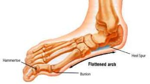 Bunions: More Information From A Chinese Medicine Perspective - image FallenArch-300x169 on https://sacredhealingtree.com