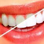 Best Dental Clinic Begpur, Aligarh, uttar pradesh