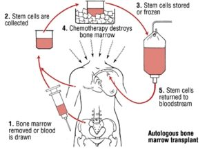 Bone Marrow Transplant how and what