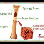 What is Bone Marrow Transplant
