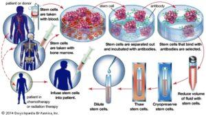 Bone Marrow Transplant Medicinal Procedure