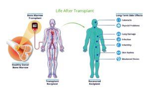 Procedure of Bone Marrow Transplant How a Bone Marrow Transplant Is Performed