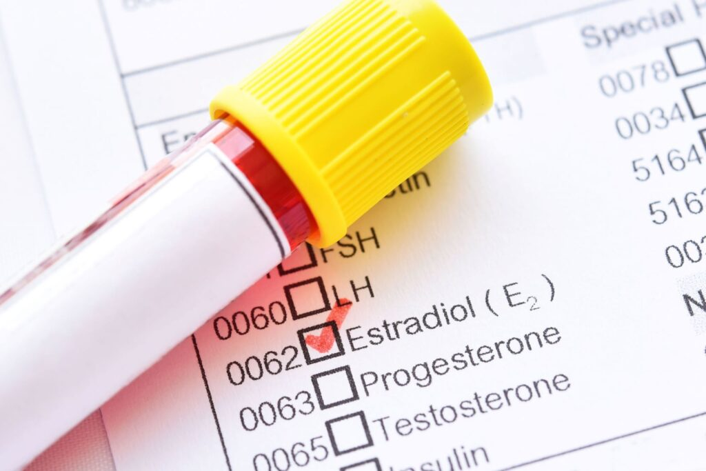 Blood test vial on top of chart with estradiol (estrogen) check marked