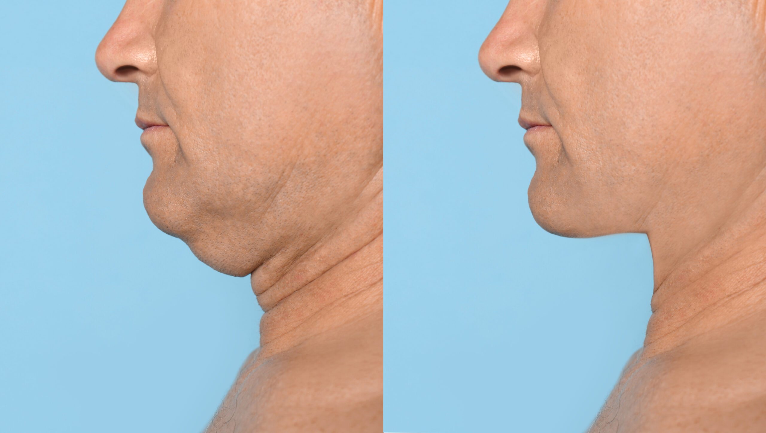 The before and after pictures of a man that received Kybella treatment for his double chin.