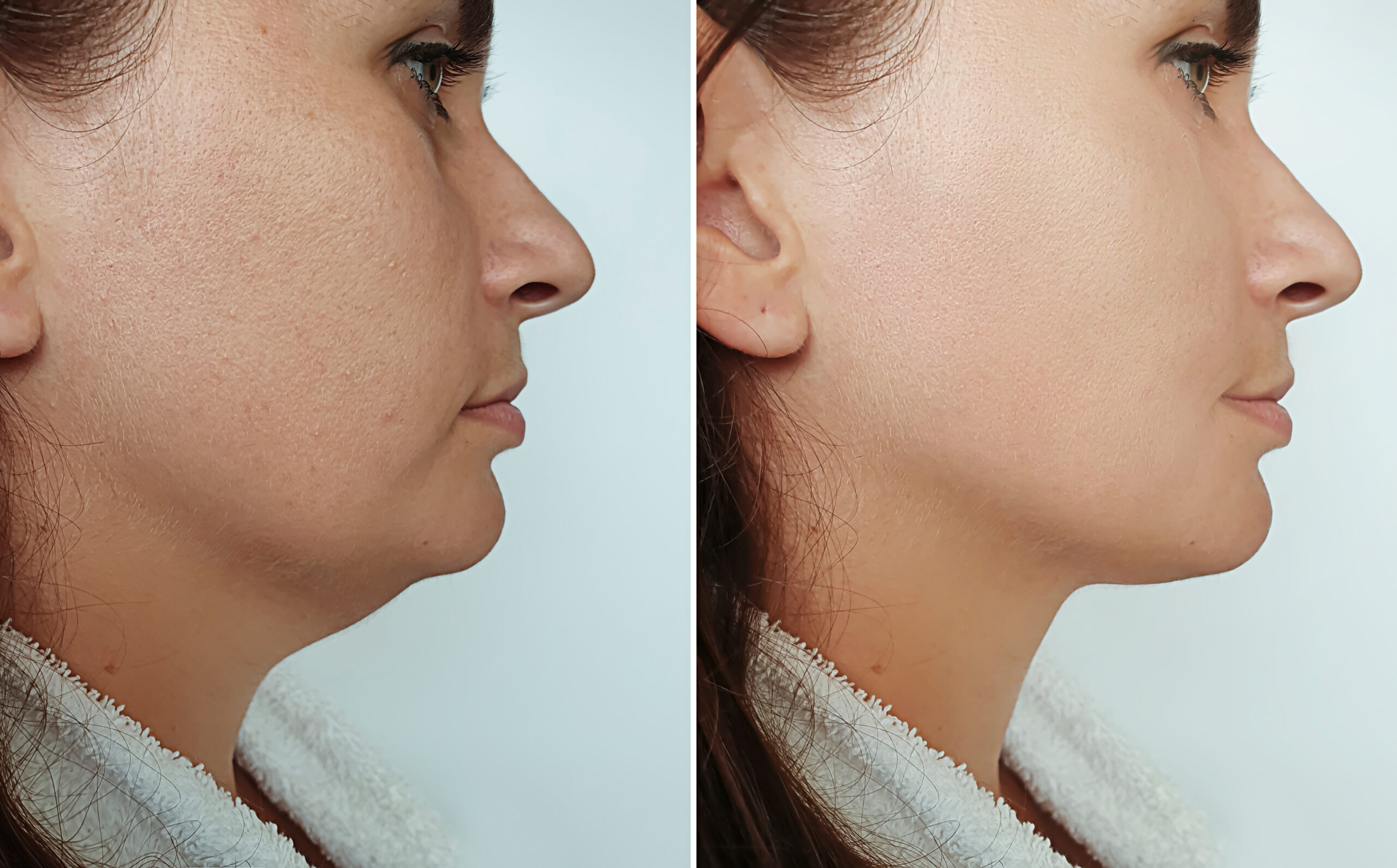 Before and after pictures of a woman who received the Kybella treatment for her double chin.