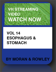esophagus & stomach