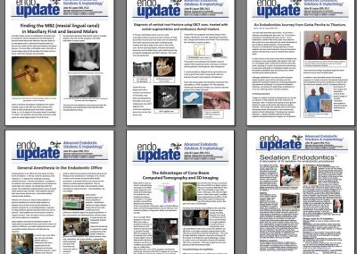Targeted Email campaign: Endo Update Newsletter. Dr. John Lepore