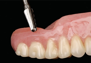 denturereline