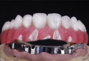 implant-overdenture