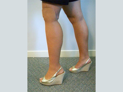 Alternative Prosthetic Services - below knee restoration - replicating each patient's unique skin texture, color, and anatomy