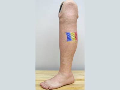 Alternative Prosthetic Services - below knee restoration - optional tattoo -  replicating each patient - Sunshine Prosthetics and Orthotics, NJ