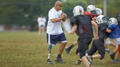Ottobock above the knee prosthetic leg - for activities - Sunshine Prosthetics and Orthotics in Wayne NJ